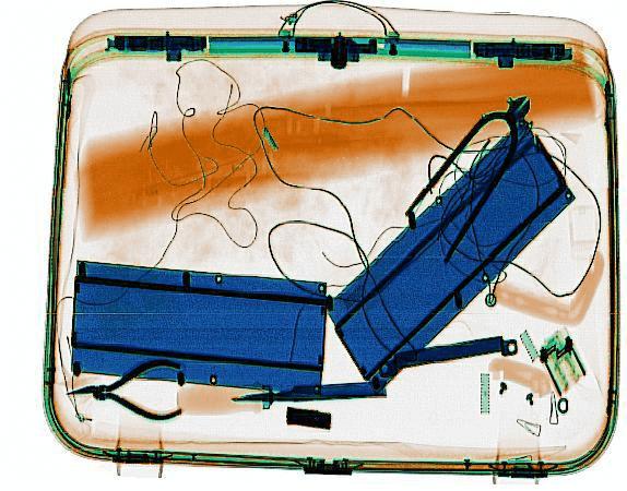 x ray cihazları